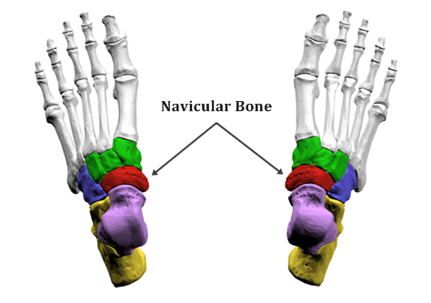 Painful Bump on Inside of Foot: The Accessory Navicular Bone